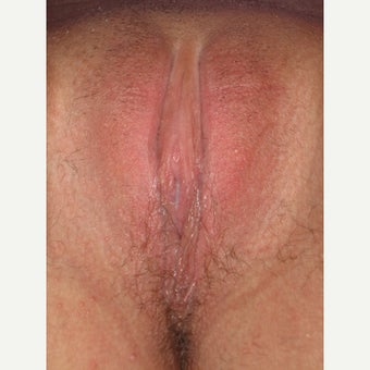 29 year old woman treated with Labiaplasty