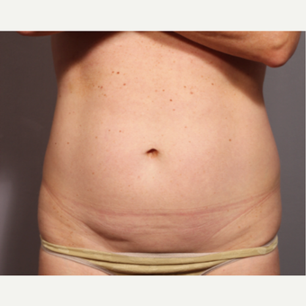 45-54 year old woman treated with Smart Lipo before 3319826
