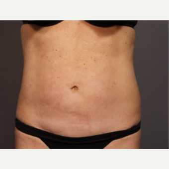 45-54 year old woman treated with Smart Lipo after 3319826