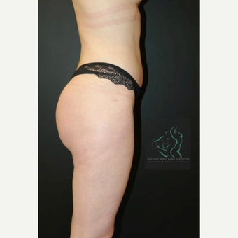 35-44 year old woman treated with Butt Augmentation after 3076103