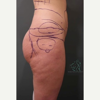 35-44 year old woman treated with Butt Augmentation before 3076103