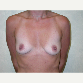 35-44 year old woman treated with Breast Augmentation before 3737967