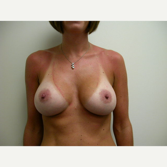 35-44 year old woman treated with Breast Augmentation after 3737967