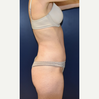 35-44 year old woman treated with Liposuction after 3734117