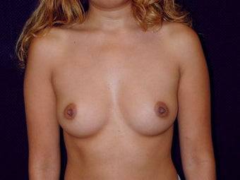 Breast augmentation before 293925