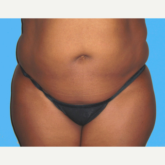 Liposuction before 3810397