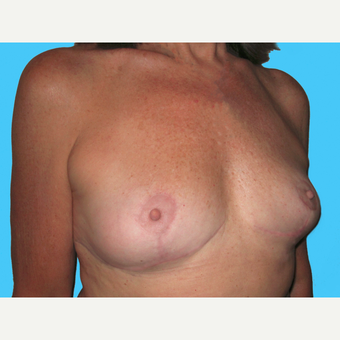 Breast Implant Removal after 3809880
