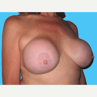Breast Implant Removal before 3809880