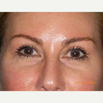 45-54 year old woman treated with Eyelid Surgery after 3493063