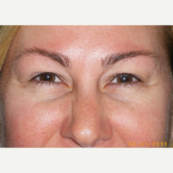 45-54 year old woman treated with Eyelid Surgery before 3493063