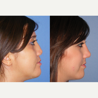 25-34 year old woman treated with Revision Rhinoplasty after 3521429