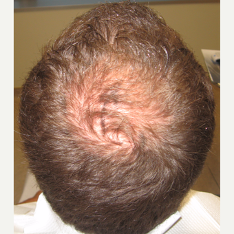 35-44 year old man treated with Hair Transplant before 3420996