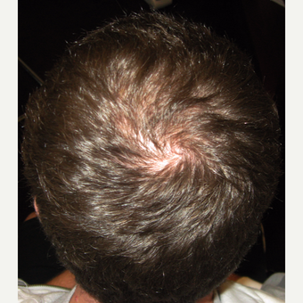 35-44 year old man treated with Hair Transplant after 3420996
