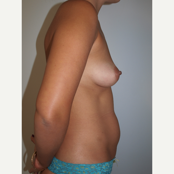 30 year old woman treated with Breast Fat Transfer (450cc each breast) before 3133899