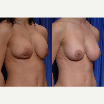 25-34 year old woman treated with Breast Implant Revision before 3318979