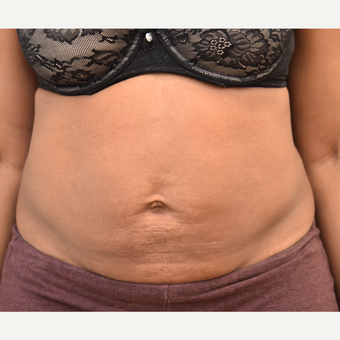 40 year old woman treated with Smart Lipo after 3725801