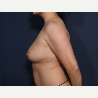 35-44 year old woman treated with Breast Lift with Implants (view 2 of 2) before 3424908