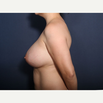 35-44 year old woman treated with Breast Lift with Implants (view 2 of 2) after 3424908