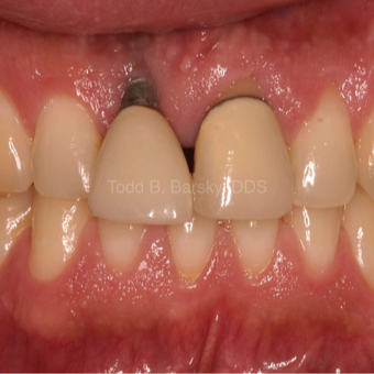 25-34 year old male treated with Dental Implants