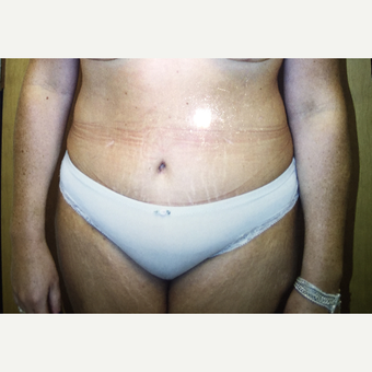 45-54 year old woman treated with Tummy Tuck after 3333556