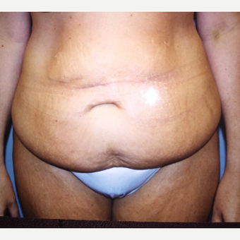 45-54 year old woman treated with Tummy Tuck before 3333556