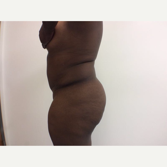 25-34 year old woman treated with Fat Transfer before 3590439