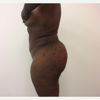 25-34 year old woman treated with Fat Transfer after 3590439