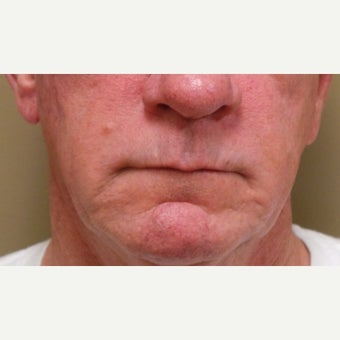 55-64 year old man treated with Juvederm after 2610337