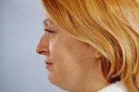 Chin Liposuction before 3446361