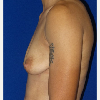 18-24 year old woman treated with Breast Augmentation before 3658992