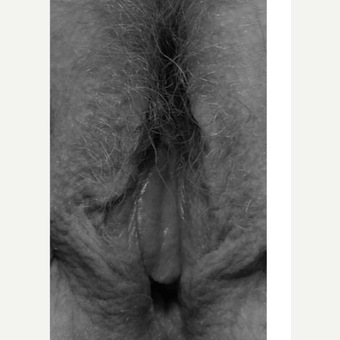 25-34 year old woman treated with Labiaplasty before 3618801
