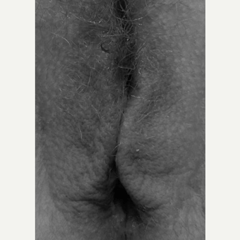 25-34 year old woman treated with Labiaplasty after 3618801
