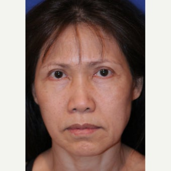 55-64 year old woman treated with Facelift before 2481453