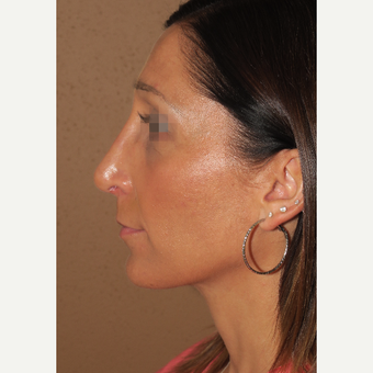 25-34 year old woman treated with Rhinoplasty after 3384582