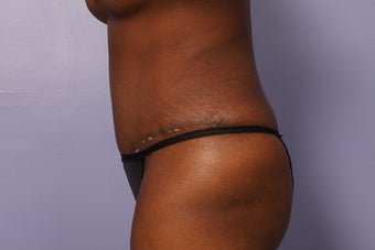 No Drain Tummy Tuck after 1195891