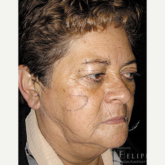 55-64 year old woman treated with Facelift before 3417507