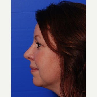 35-44 year old woman treated with Rhinoplasty after 1618860