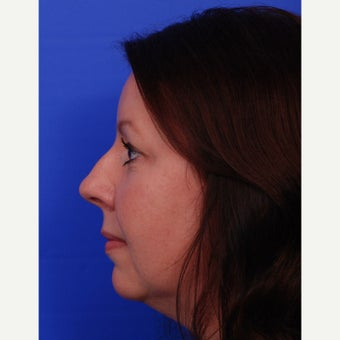 35-44 year old woman treated with Rhinoplasty before 1618860