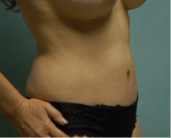 44 year old woman seven months after drainless tummy tuck, breast aug and vaser liposuction after 3261050