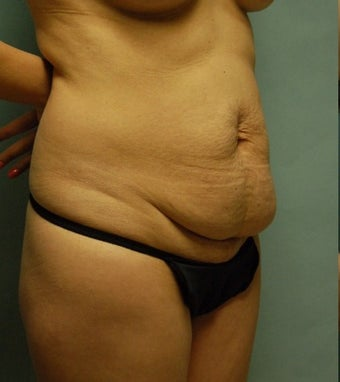 44 year old woman seven months after drainless tummy tuck, breast aug and vaser liposuction before 3261050
