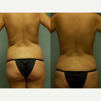 44 year old woman seven months after drainless tummy tuck, breast aug and vaser liposuction 3261050