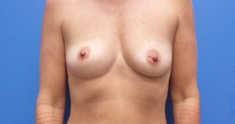 45-54 year old female treated with Breast Augmentation 410 implants before 1736417