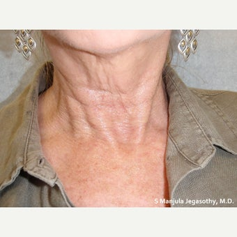 Platelet Rich Plasma (PRP) Injections to Tighten the Neck