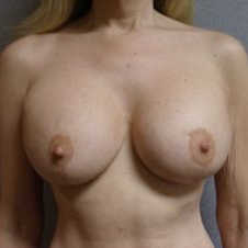 35-44 year old woman treated with Breast Lift with Implants after 3122379