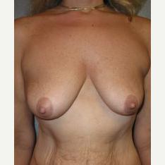 35-44 year old woman treated with Breast Lift with Implants before 3122379
