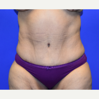 55-64 year old woman treated with Tummy Tuck after 3259823
