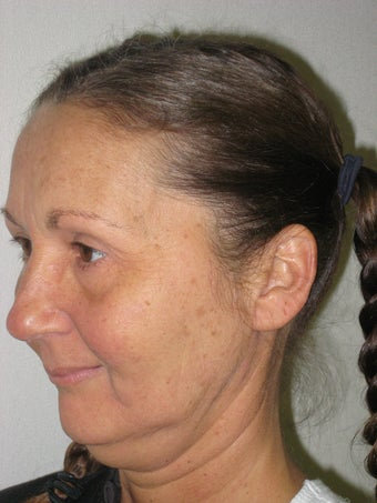 Facelift, browlift