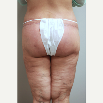 45-54 year old woman treated with Brazilian Butt Lift Revision after 3651990