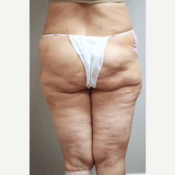 45-54 year old woman treated with Brazilian Butt Lift Revision before 3651990