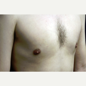 31 year old man treated for gynecomastia with liposuction after 3419136